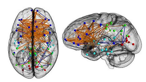 'Hersenonderzoek bevestigt vooroordelen over mannen en vrouwen'